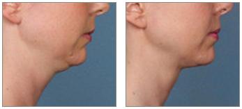 kybella double chin treatment