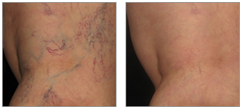 Vein Removal - Beauty Park Spa - Santa Monica, Los Angeles